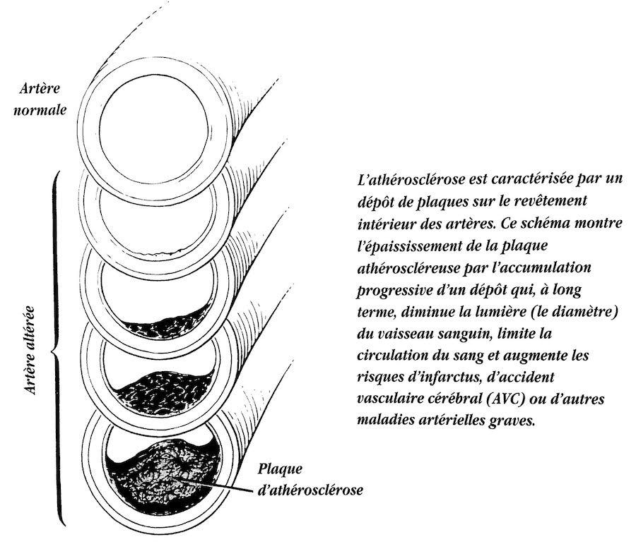 Artère normale vs athérosclérose